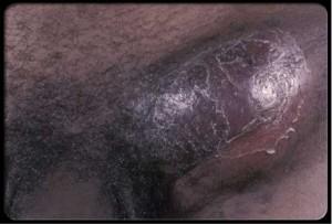 linfogranuloma